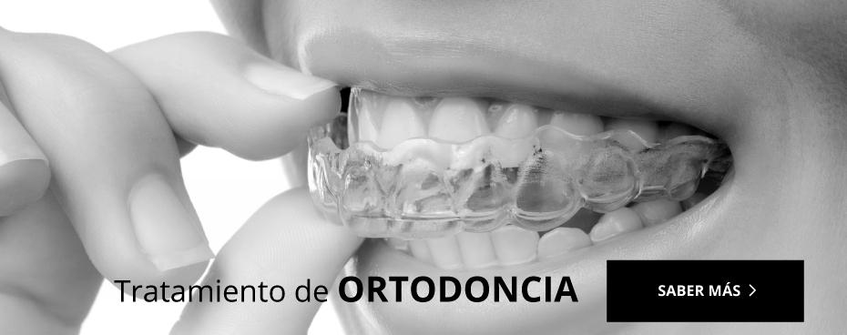 Ortodoncia Daimiel